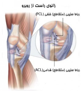 ACL-PCL-265x300
