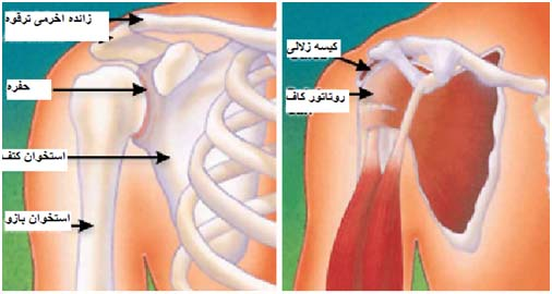 Shoulder-surgery-1