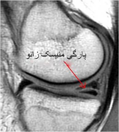 meniscus-MRI