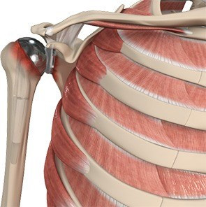 revision-shoulder-replacement