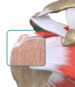 shoulder-calcific-tendonitis-2-258x300