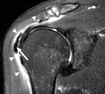shoulder-calcific-tendonitis-mri